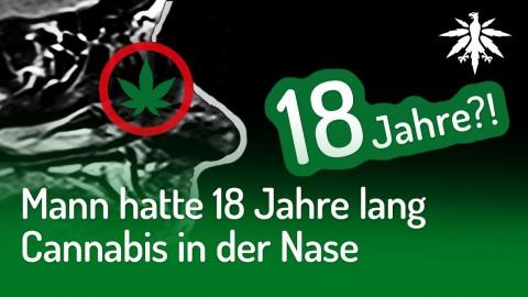 Mann hatte 18 Jahre lang Cannabis in der Nase | DHV-News #225